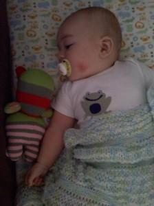 my poor eczema baby